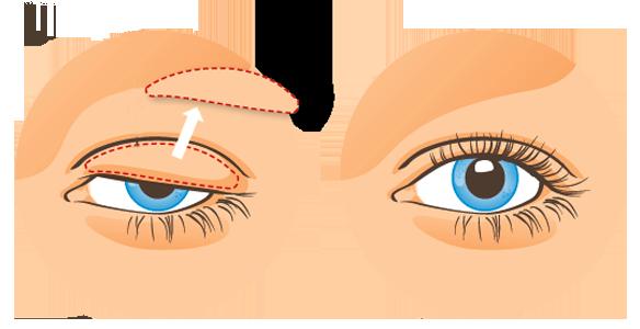 en-quoi-consiste-la-blepharoplastie